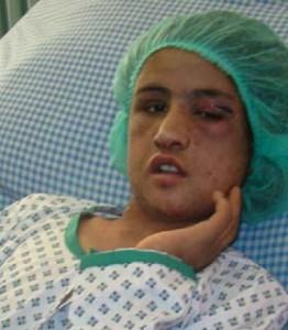 سحر گل، یکی از قربانیان خشونت خانگی سیستماتیک.
